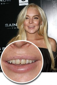 Lindsay Lohan Bad Teeth Photo