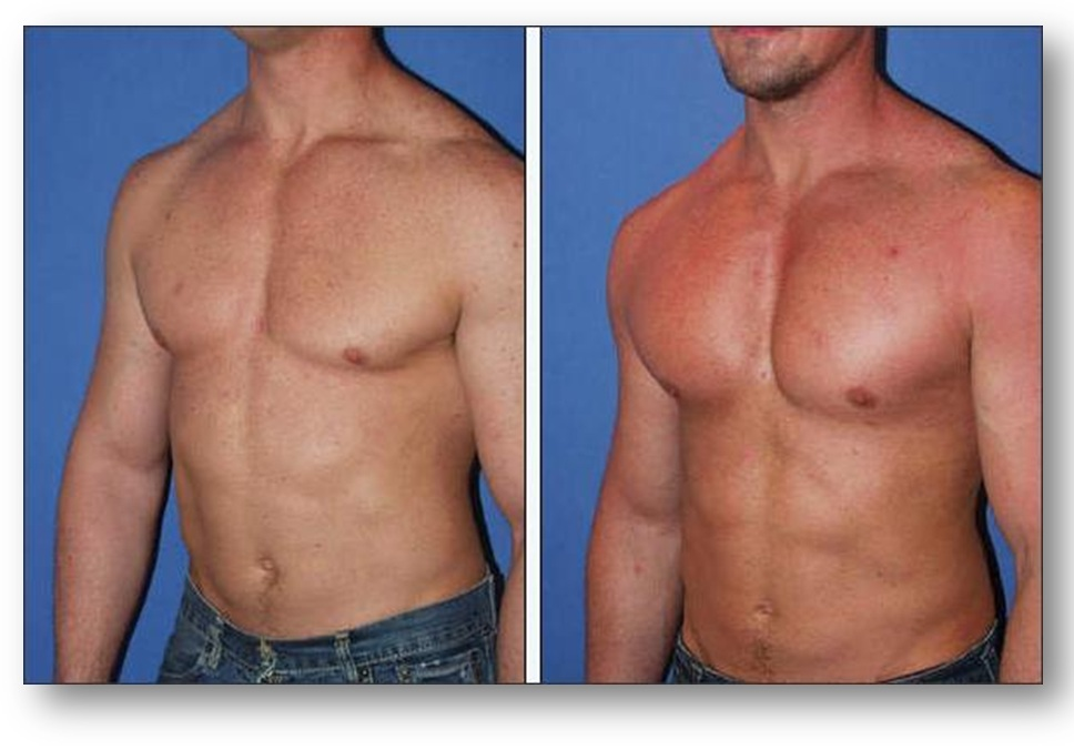 http://secretsurgery.files.wordpress.com/2012/07/pectoral-implants-in-poland.jpg