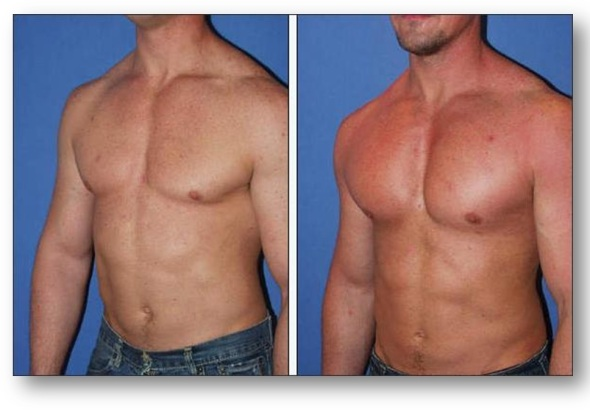 Pectoral Implants in Poland
