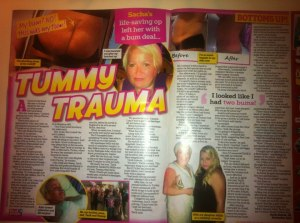 sacha selcuk real people magazine secret surgery