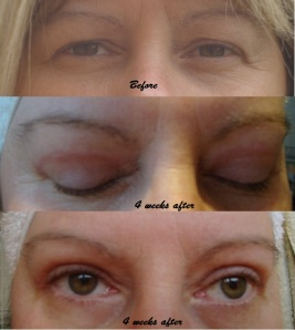 trudi eyelid correction before & after